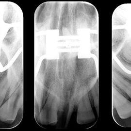 radiografia-oclusal